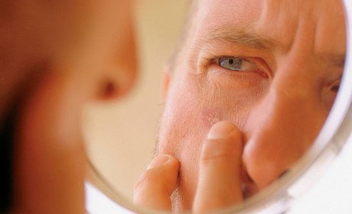 Skin Cancer Prevention Tips: Monthly Self-Exams