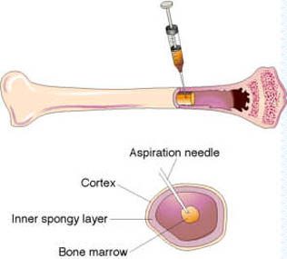 The Marrow Miner, Making Donating Bone Marrow an Easier Process